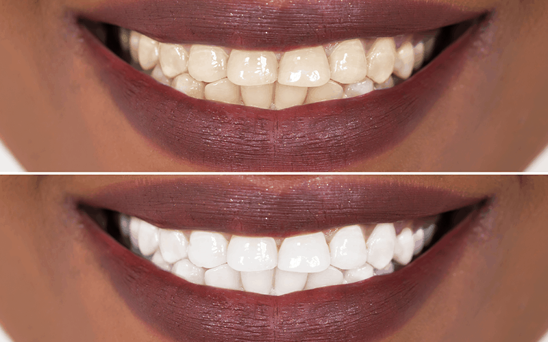 teeth whitening atlanta 2018