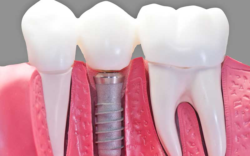 dental implants in atlanta