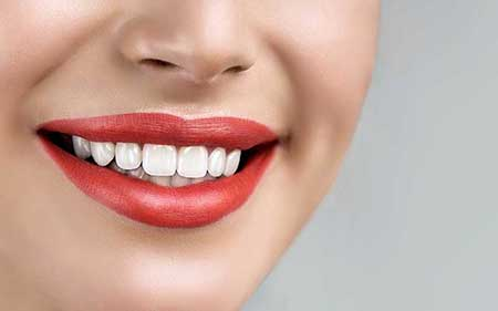teeth-whitening-00