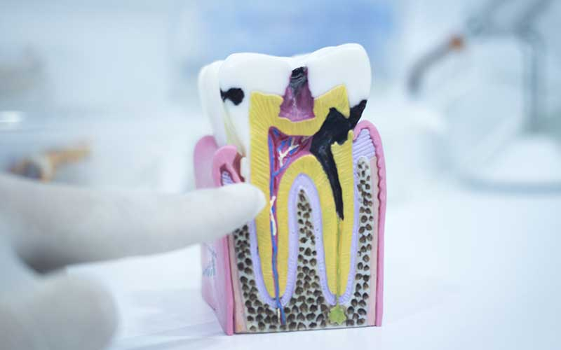 What is Tooth Decay and How to Prevent it