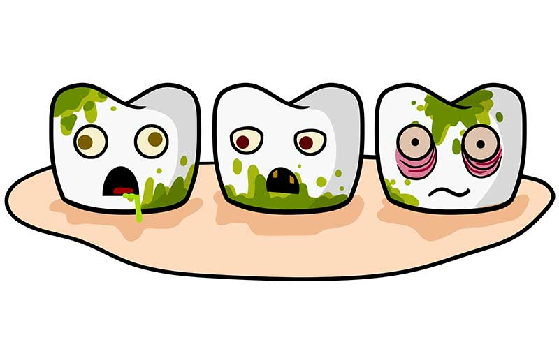 types of tooth stains
